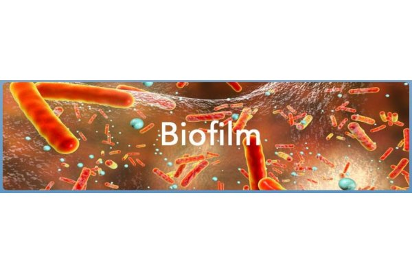 Jenfitch - Chemical for Biofilm Removal