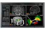Neuroinspire - Surgical Planning Software