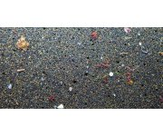 Microplastics Found in Human GI Tracts